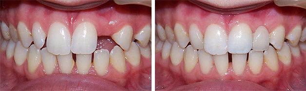 зубные съемные протезы фото до и после