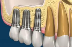 Импланты зубов из титана
